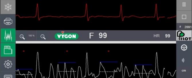 Fribrilación en ECG