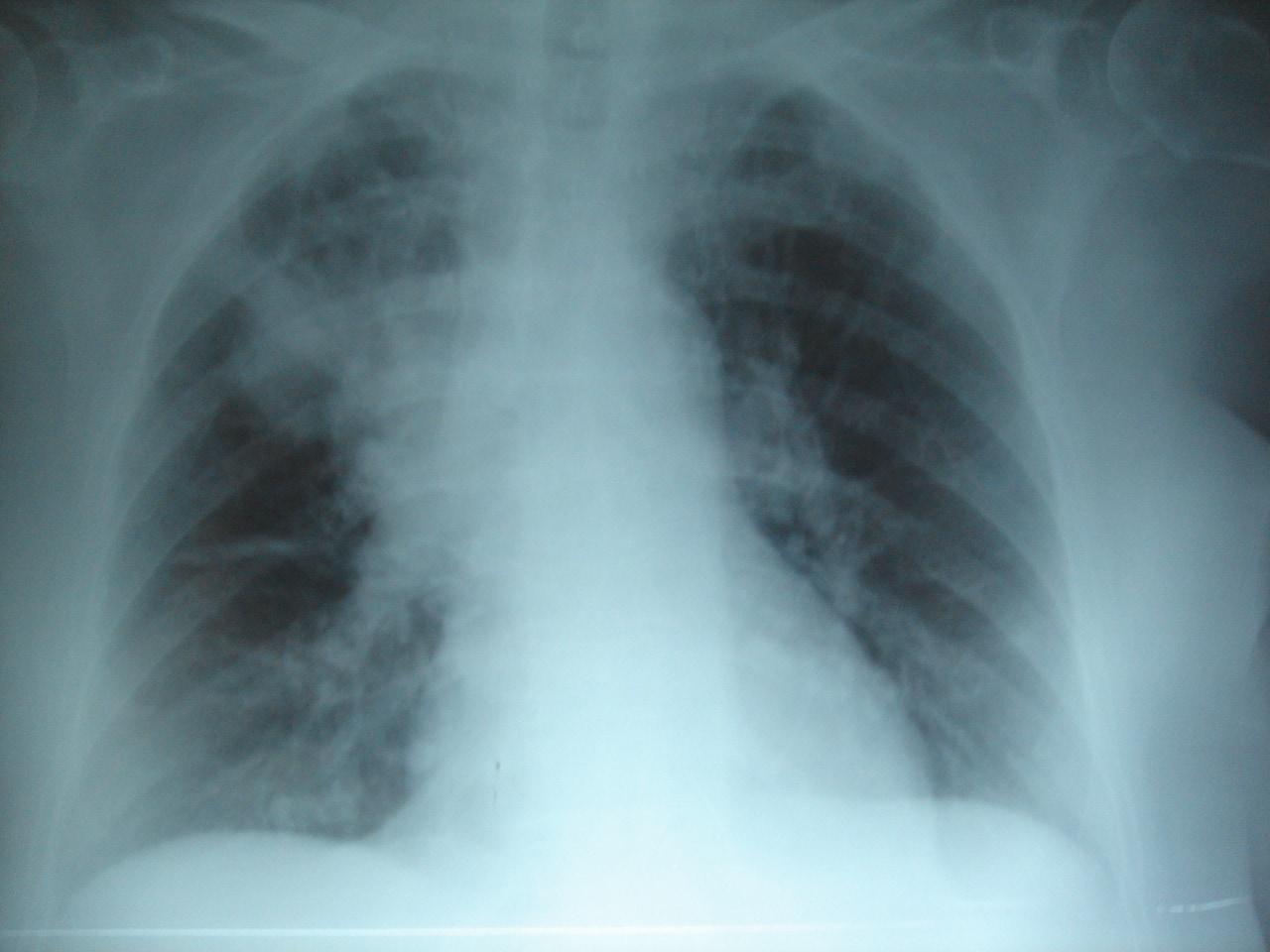 Cómo diagnosticar la infección pulmonar o neumonía asociada a la ventilación