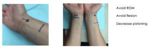 Imagen 2: Zona de canalización de catéter arterial periférico radial. Cortesía de la dra. Amy Bardin (presentación GAVeCeLT 2019)