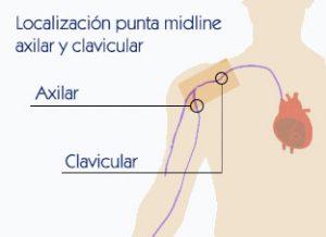 Punta del catéter en subclavia y axilar
