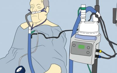 CPAP vs Alto Flujo: ¿por qué elegir si las puedes combinar con mejores resultados?
