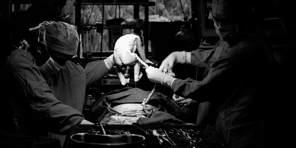 ¿Cuándo está indicado el uso de un catéter umbilical?