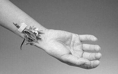 Complicaciones cutáneas en el acceso vascular: las MARSI