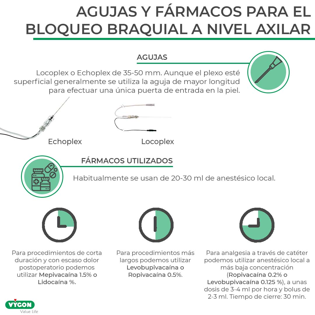Claves para realizar un buen bloqueo del plexo braquial a nivel axilar