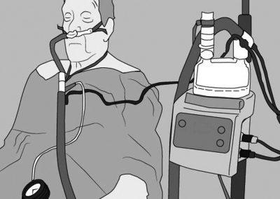 Whitepaper: CPAP vs Alto Flujo: ¿por qué elegir si las puedes combinar con mejores resultados?