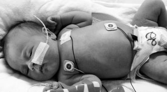 ¿Qué catéter elegir como acceso venoso en neonatos?