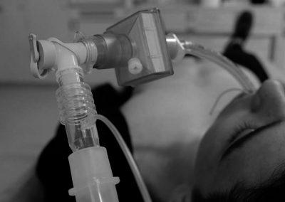 Whitepaper: Intubación segura en tiempos de COVID-19, el papel de las bujías