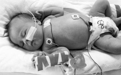 Gestión del capital venoso en neonatos: selección del catéter y calibre adecuado