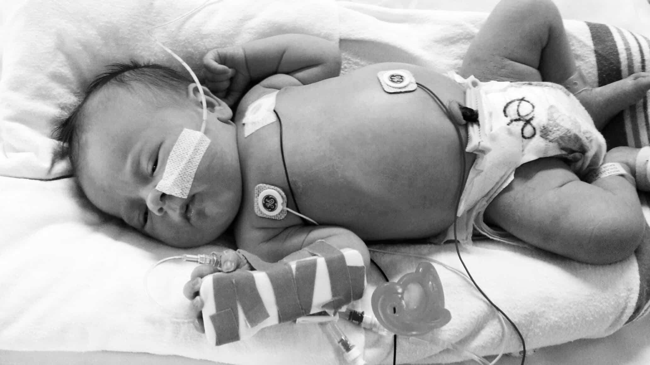Gestión del capital venoso del recién nacido