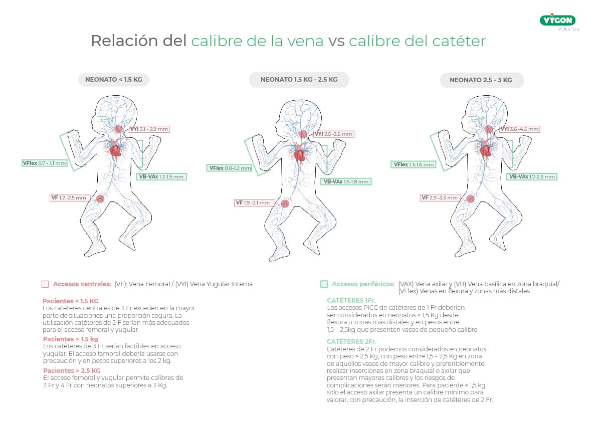 Relación del calibre de la vena vs calibre del cateter