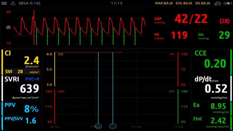 monitorización neonatología