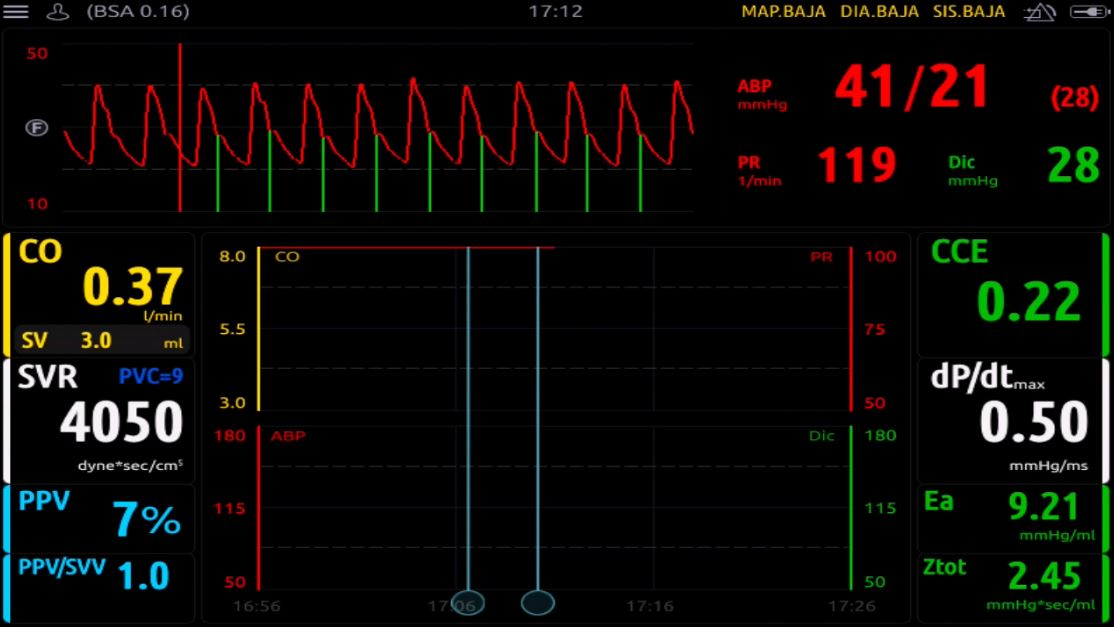 monitorización neonatología no indexados