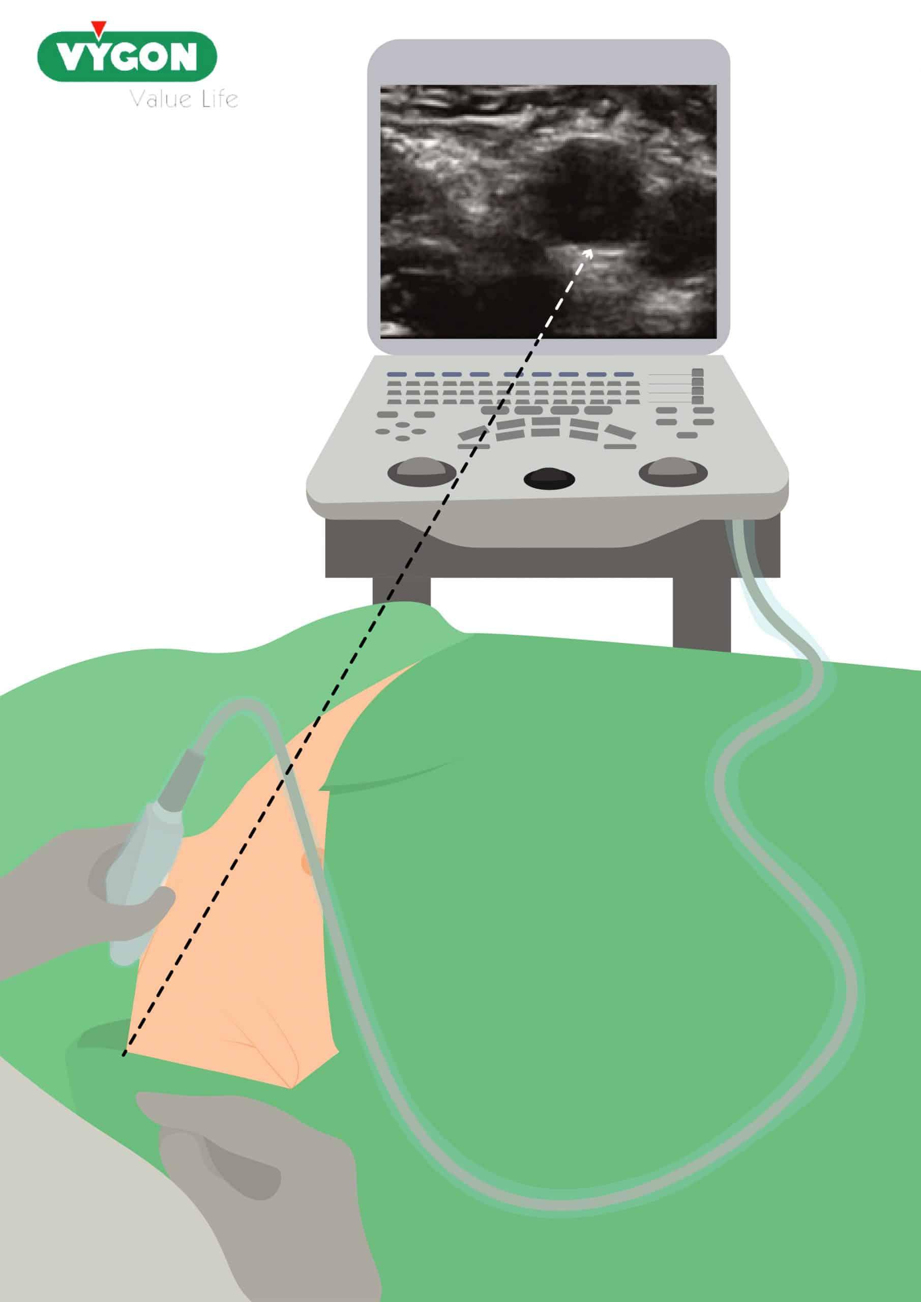 posición operador (ecografía)