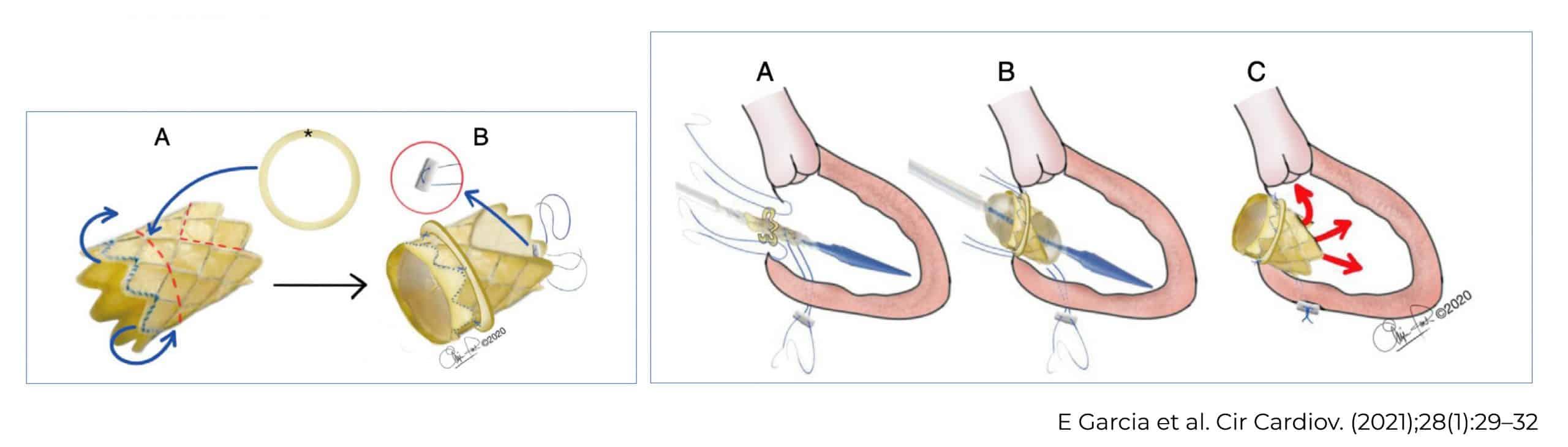 postoperatorio cx cardiaca ped