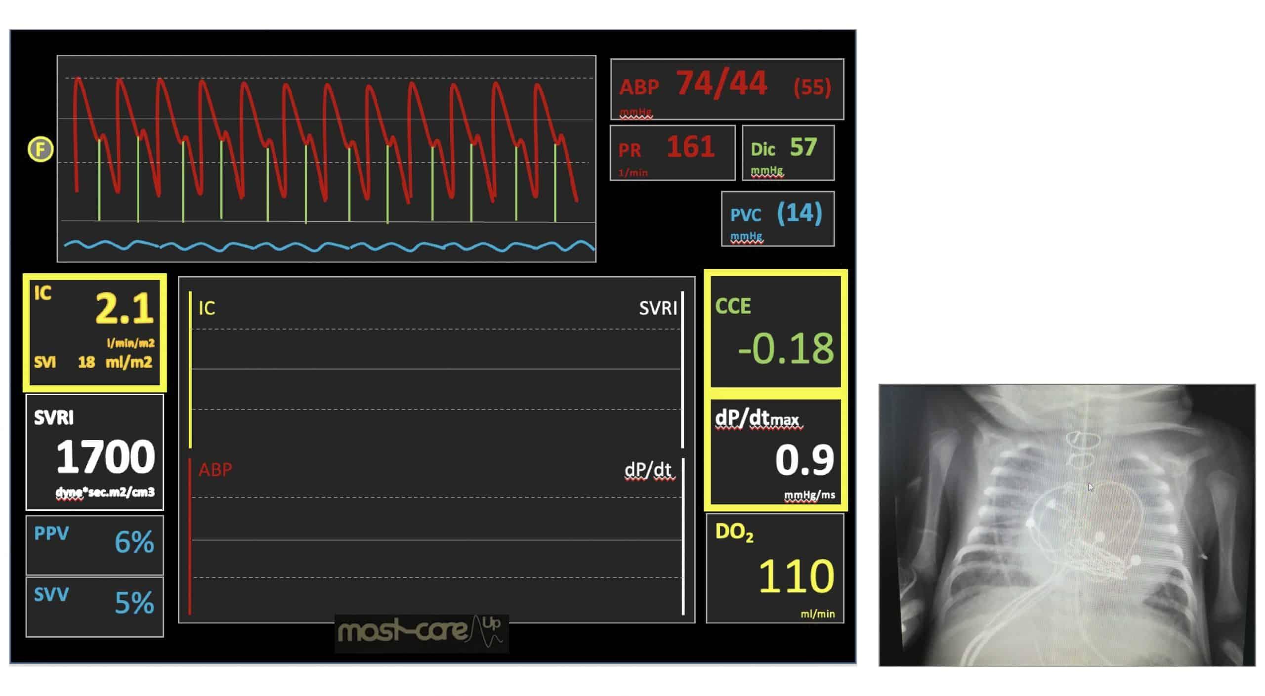 monitorización cx cardíaca ped