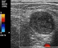 Detección de trombos y hematomas
