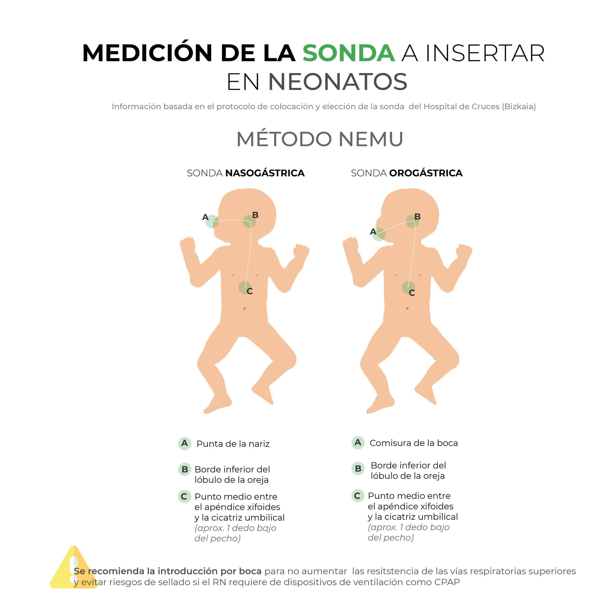 Medición de la sonda a insertar en neonatos: método NEMU
