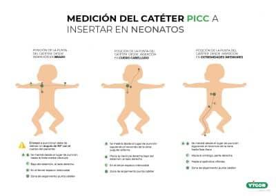 Medición del catéter PICC a insertar en Neonatos