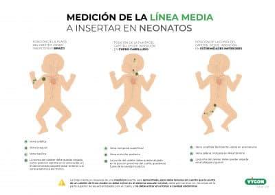 Medición de la Línea Media a insertar en Neonatos