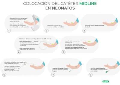 Colocación de catéter midline en neonatos