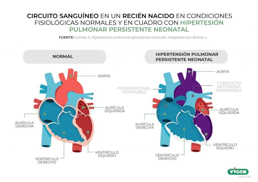 Circuito sanguíneo en un recién nacido en cuadro con hipertensión pulmonar persistente neonatal