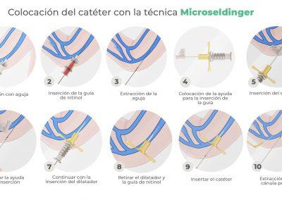 Técnica Microseldinger o Seldinger modificada: colocación de PICC