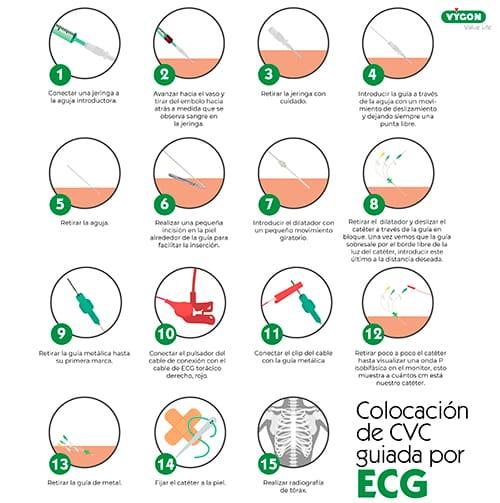 colocación cvc por ecg