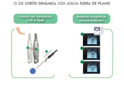 Técnica ecográfica dinámica en plano transversal