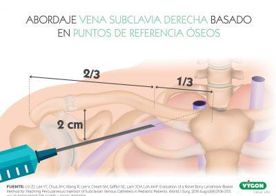 Abordaje vena subclavia derecha basado en puntos de referencia óseos